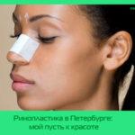 Ринопластика в Петербурге: мой пусть к красоте