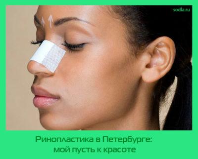 Ринопластика в Петербурге