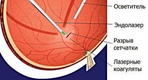 Лазерокоагуляция сетчатки глаза